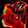 migraine-attack-image